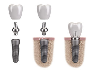 3 Prong Dental Implants Placement Houston