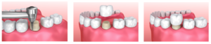 Dental-Crowns Procedure Process