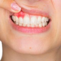 Why do My Gums Bleed when I Floss?