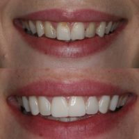 Trial Smiles: A Way to Try On Veneers Before You Commit