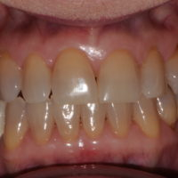 How Can I Treat Deep Stains on My Teeth?