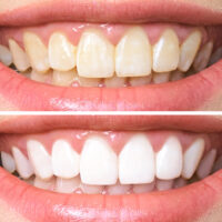 How to Prevent Dental Staining