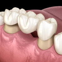 Traditional Dental Bridges vs. Implant-Supported Bridges