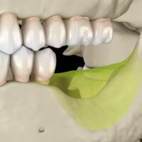 Will I Need a Bone Graft Before I Get Dental Implants?