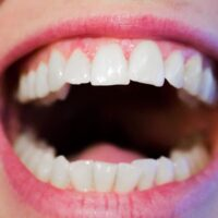 What Happens If I Stop Wearing My Retainers?