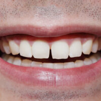 Can Cosmetic Bonding Improve My Smile?