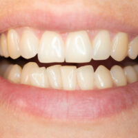 How Can I Straighten Crowded Teeth?