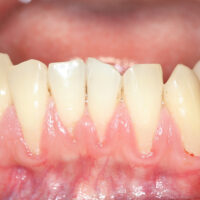 Is Gum Recession Bad for my Dental Health?