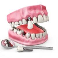 What are the Signs of Dental Implant Failure?