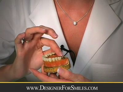 https://www.designerforsmiles.com/wp-content/uploads/video/Veneers-ClearLakeTexas-Designerformsmiles